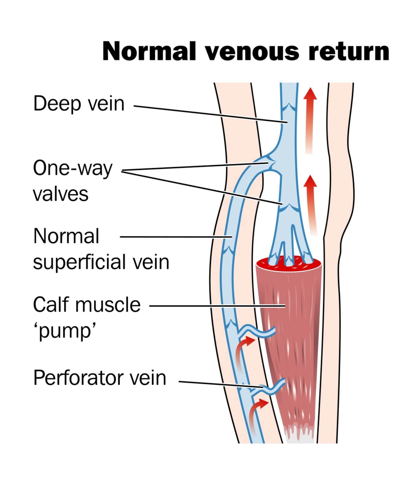 Venous Insufficiency Treatment
