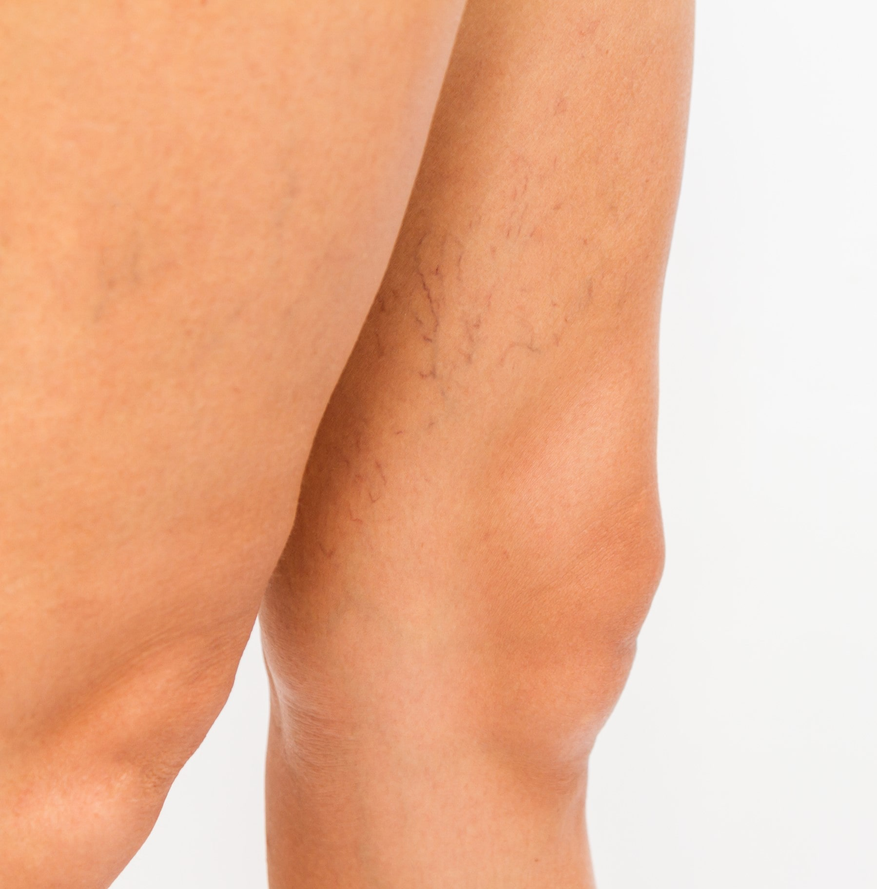 Varicose Veins and Spider Veins Treatment